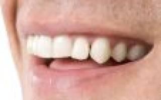 Сонник выпал передний зуб