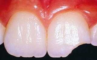 К чему снится сломанный зуб: если он сломался или откололся
