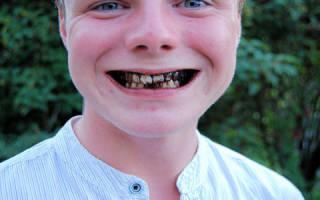 Сонник гнилые зубы во сне к чему снятся гнилые зубы