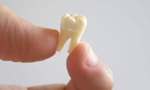 Сонник Выпал Передний Зуб: верхний или нижний во сне видеть к чему снится?