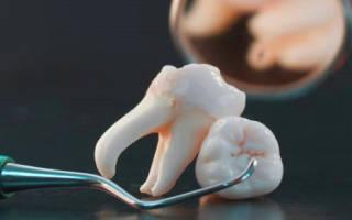 Крошатся зубы во сне — 10 детальных трактовок сноведения — Сонник крошатся зубы